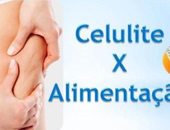 Alimentação x Celulite